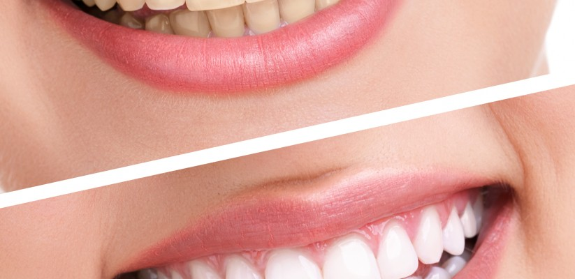 Best teeth whitening strips