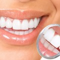 Cheap Teeth Whitening
