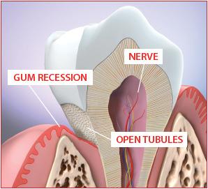 Sensitive teeth whitening
