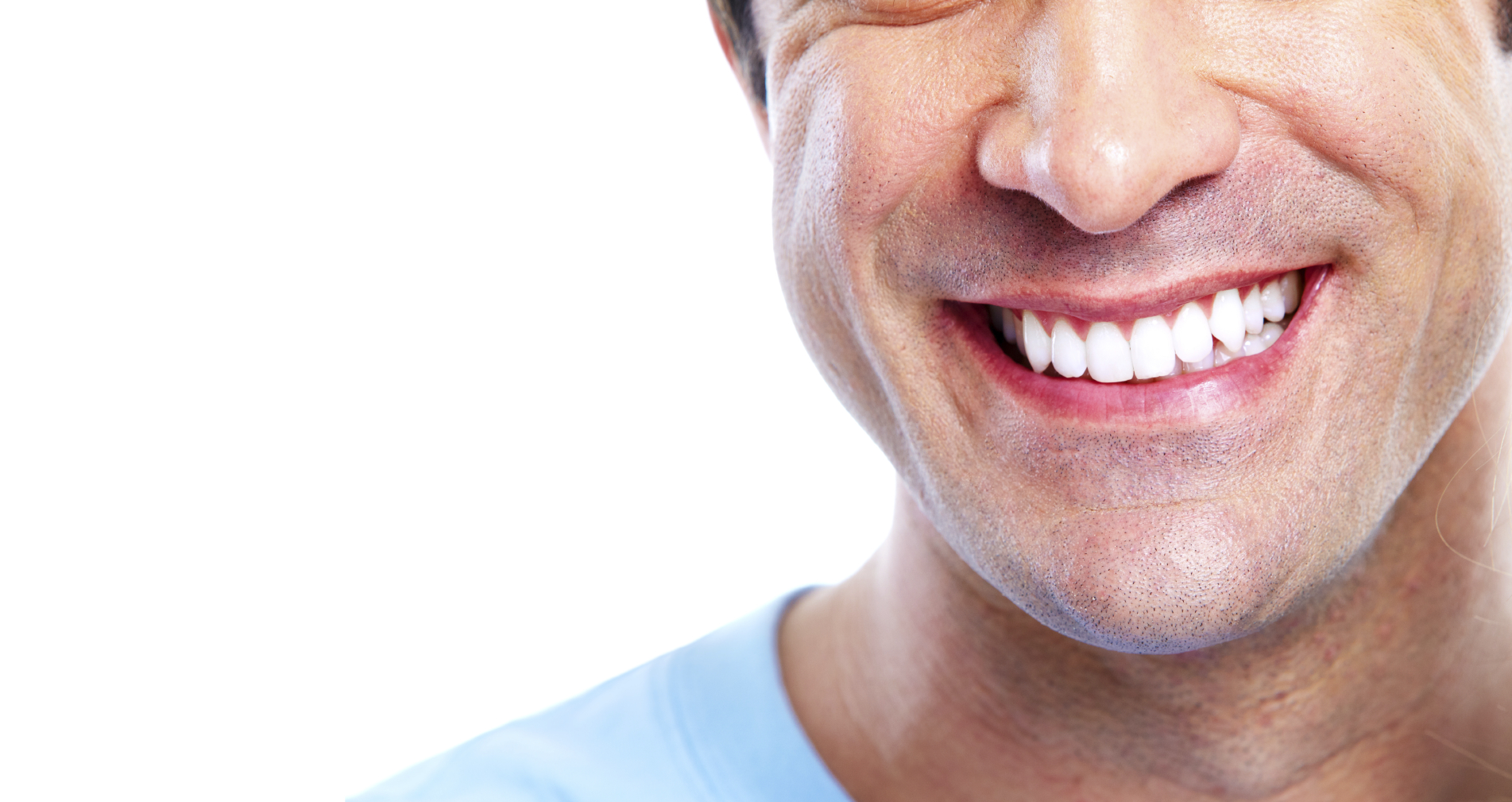 What Is Currently The Best Teeth Whitening System