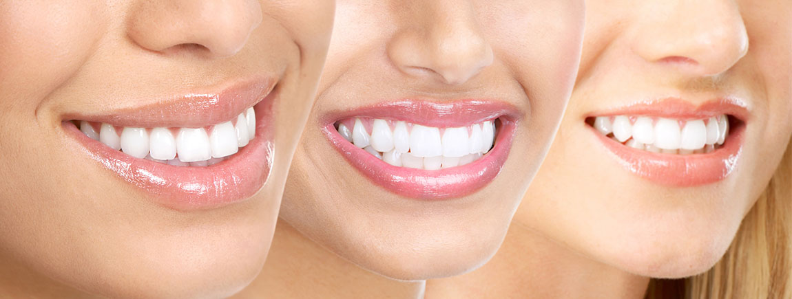 How to get white teeth fast