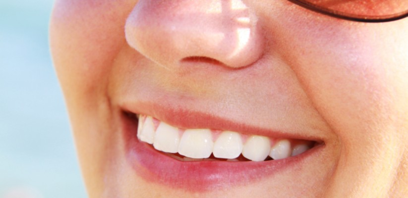 Teeth Whitening costs