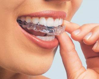 Teeth whitening trays