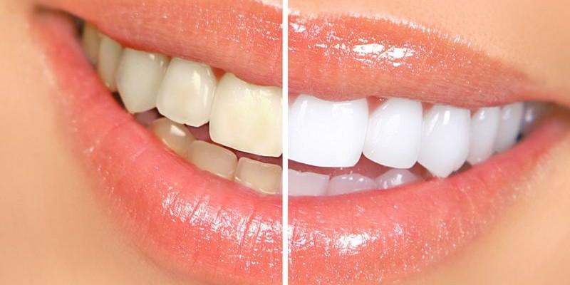 How to naturally whiten teeth