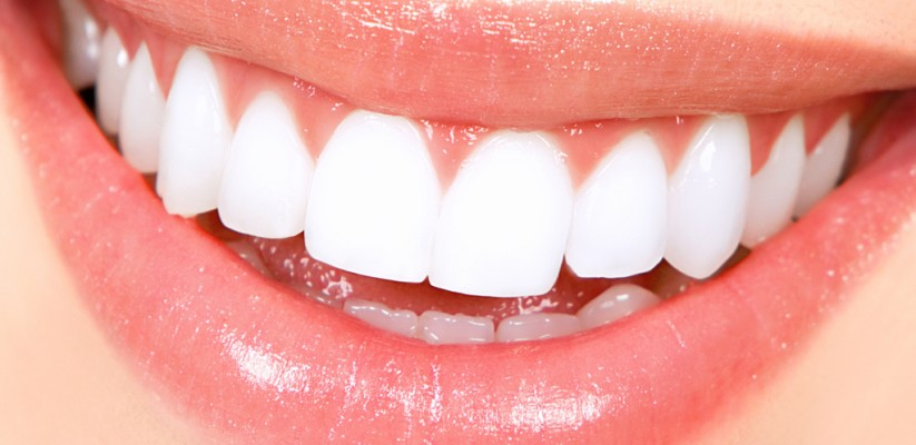 Tips for teeth whitening